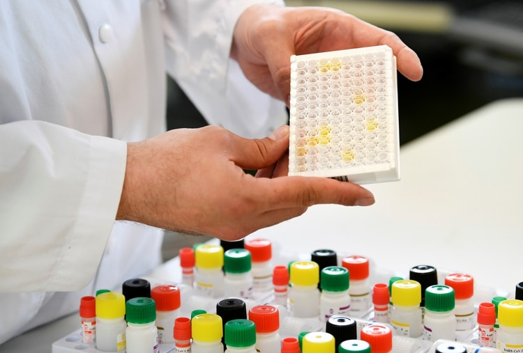 En todo el mundo se estudian alternativas de tratamiento contra el coronavirus, y el plasma muestra resultados prometedores (REUTERS/Piroschka Van de Wouw)