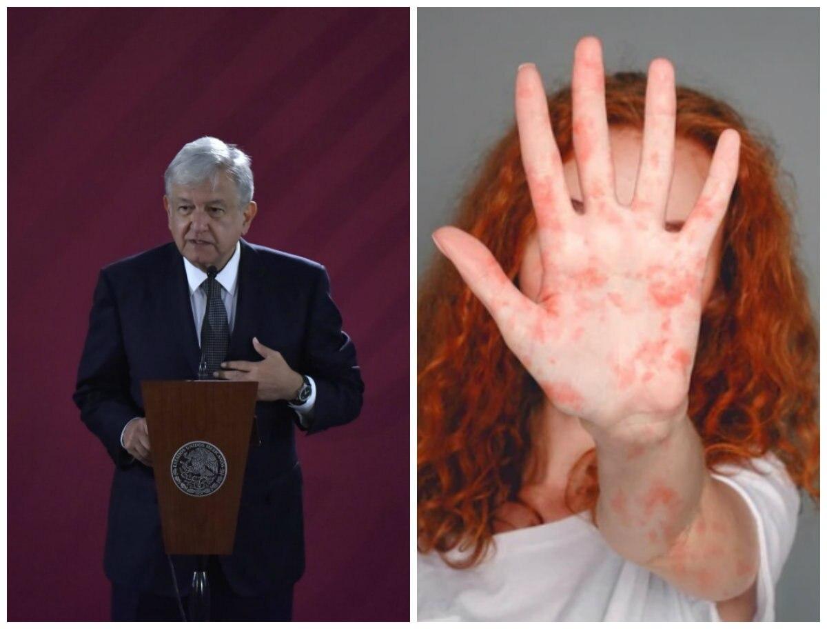 """""""No hay algo que alarme"""": López Obrador habló sobre los casos de sarampión registrados en CDMX"""