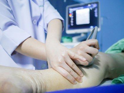 1 de cada 4 personas en el mundo muere por causas asociadas a la trombosis ya sea en arterias o en venas (Shutterstock)