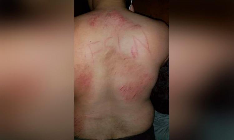 Marcas en la espalda de Leonardo Rivas. (Foto cortesía)