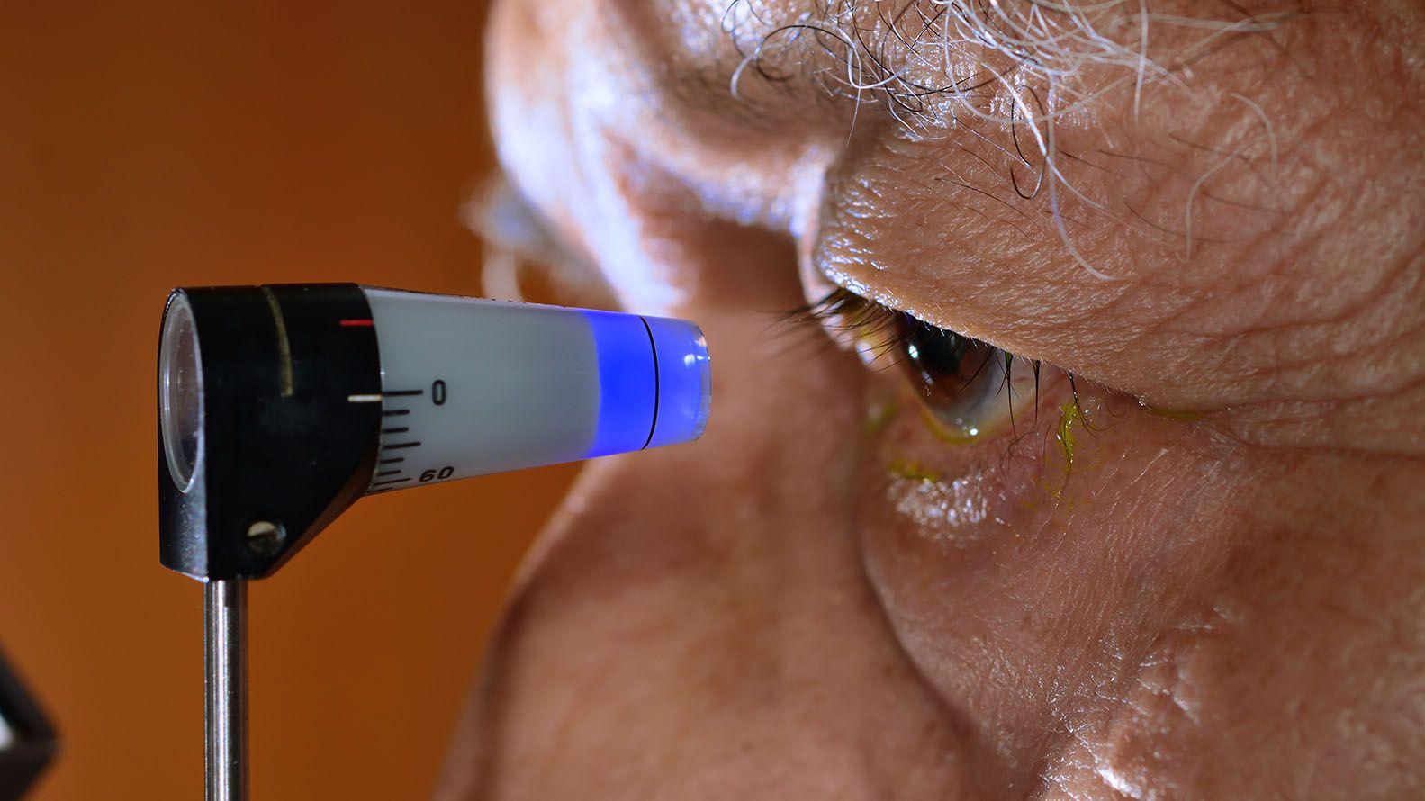 Hay diversos tipos de glaucoma (Shutterstock)