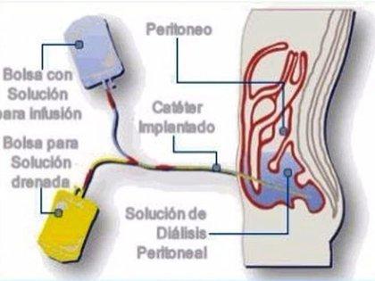 La diálisis es un proceso médico mediante el cual se extraen las toxinas y el exceso de agua de la sangre