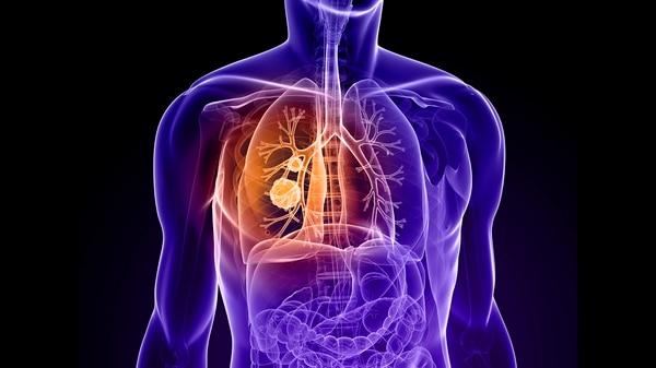 Para la detención del cáncer de pulmón, la expresión genética en las células de la nariz pueden ser utilizados como biomarcador y permitir su cura inmediata (iStock)