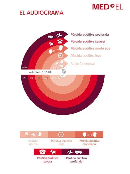 Conocer las primeras señales de daño auditivo es clave para consultar a tiempo