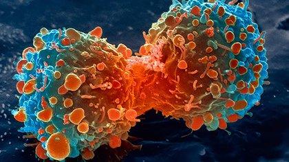 Se estima que el nuevo método es efectivo para el diagnóstico