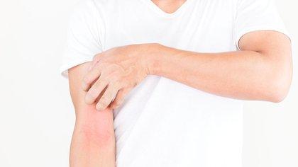 Varias afectaciones a la piel han sido asociadas a los casos de COVID-19 donde los síntomas han sido leves. (Shutterstock)