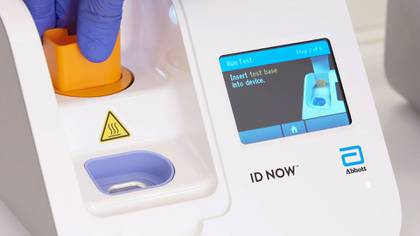 El test puede realizarse fuera de los hospitales
