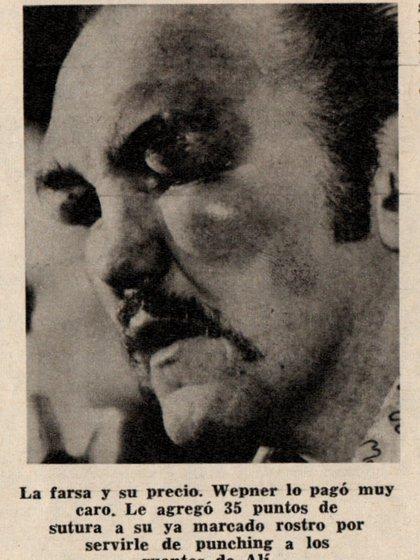 El recorte no deja dudas. El tongo terminó en paliza, por el enojo de Alí. Wepner se llevó 35 puntos de sutura.