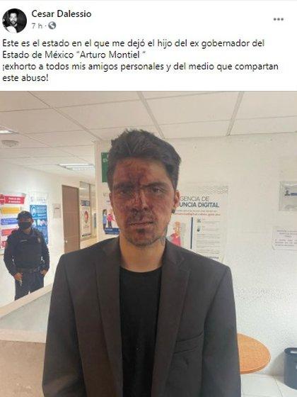 Cesar D'Alessio publicó ataques de un político; sin embargo, horas después borró las imágenes (Foto: Facebook de Cesar D'Alessio)