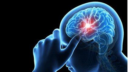 Es imprescindible actuar con rapidez ante un ACV para salvar la mayor cantidad de neuronas y la vida (iStock)