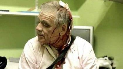 El periodista Julio Bazán aún sigue internado en terapia intermedia