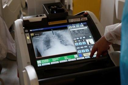El COVID-19 a menudo ataca primero a los pulmones, pero no es simplemente una enfermedad respiratoria, y en muchas personas, los pulmones no son el órgano más afectado (REUTERS)