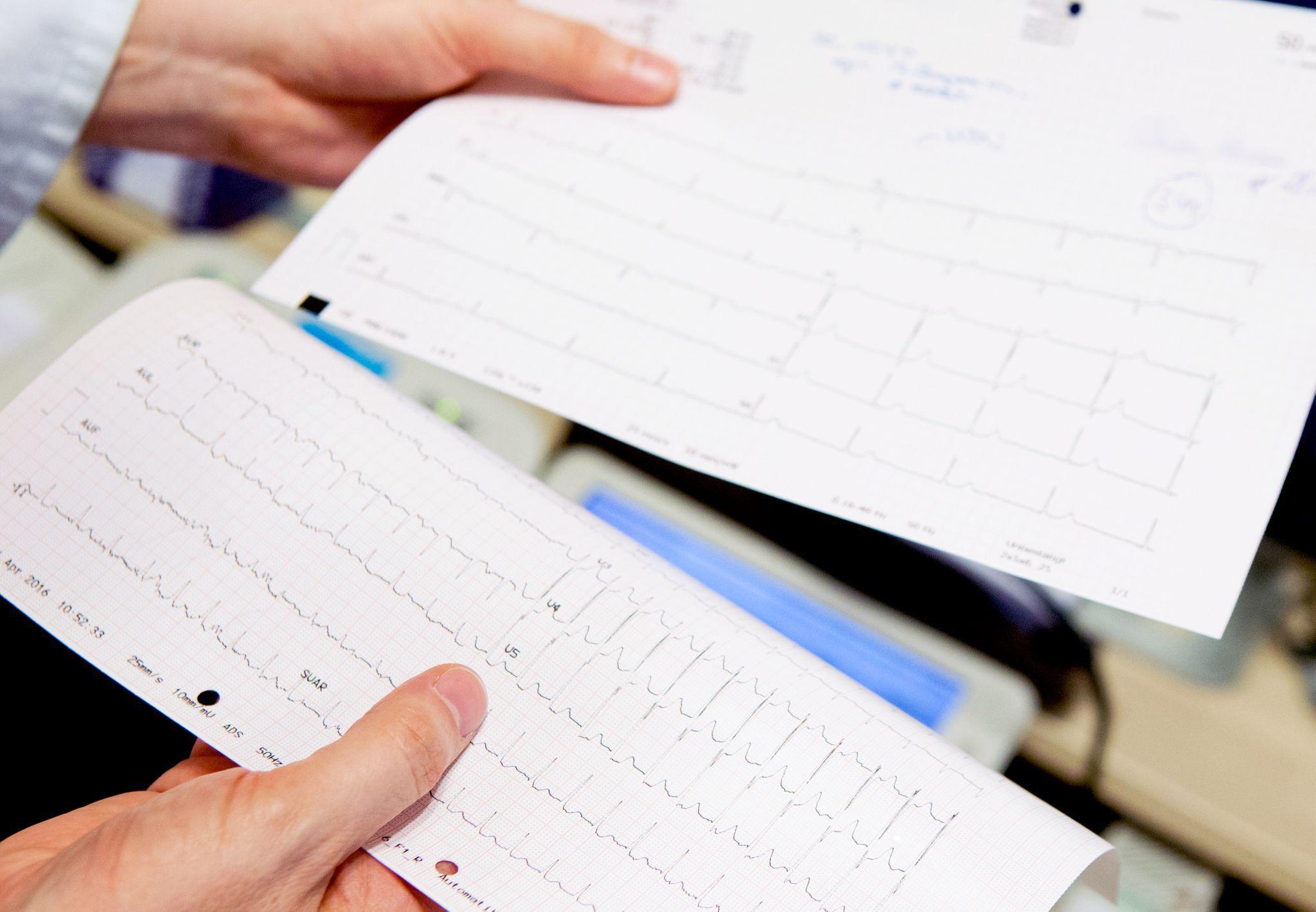 ARCHIVO - El electrocardiograma puede dar indicios sobre una insuficiencia cardíaca. Foto: Oliver Krato/dpa