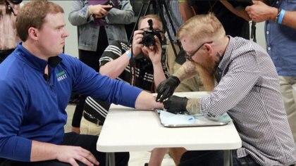 Tony Dana, vicepresidente de mercadeo internacional de Three Square Market, en el momento en que se deja implantar el microchip (Foto: AP)