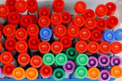 El laboratorio de Medicina y Virología WU en Seattle, Washington, analiza muestras de COVID-19 - REUTERS/Brian Snyder/File Photo