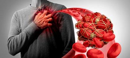 Las trombosis arteriales en cerebro y corazón son más frecuentes. 17 millones de eventos cerebrales vasculares suceden al año en el mundo (Shutterstock)