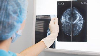 La Organización Mundial de la Salud hace énfasis en doce recomendaciones para prevenir los diferentes tipos de cáncer (Getty)