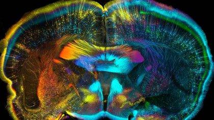 Visión psicodélica del cerebro durante el consumo de LSD (M.B.)