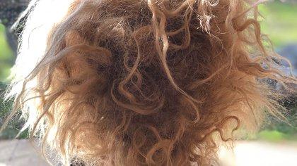 El síndrome del cabello no combinable es una afección que se caracteriza por pelo seco y encrespado que no puede peinarse