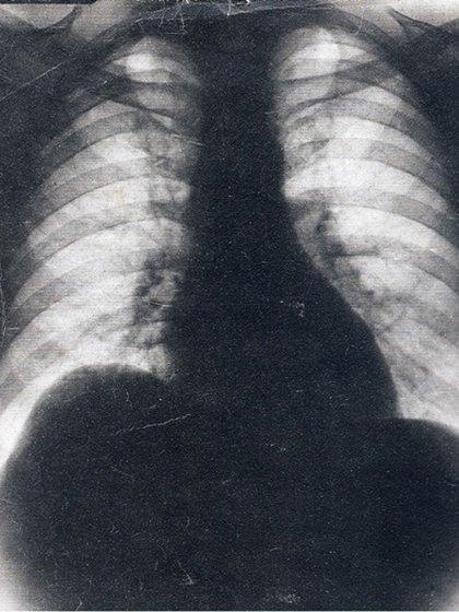 La falsa radiografía de Perón que usó Mazza para presentar el informe médico sobre la salud del coronel