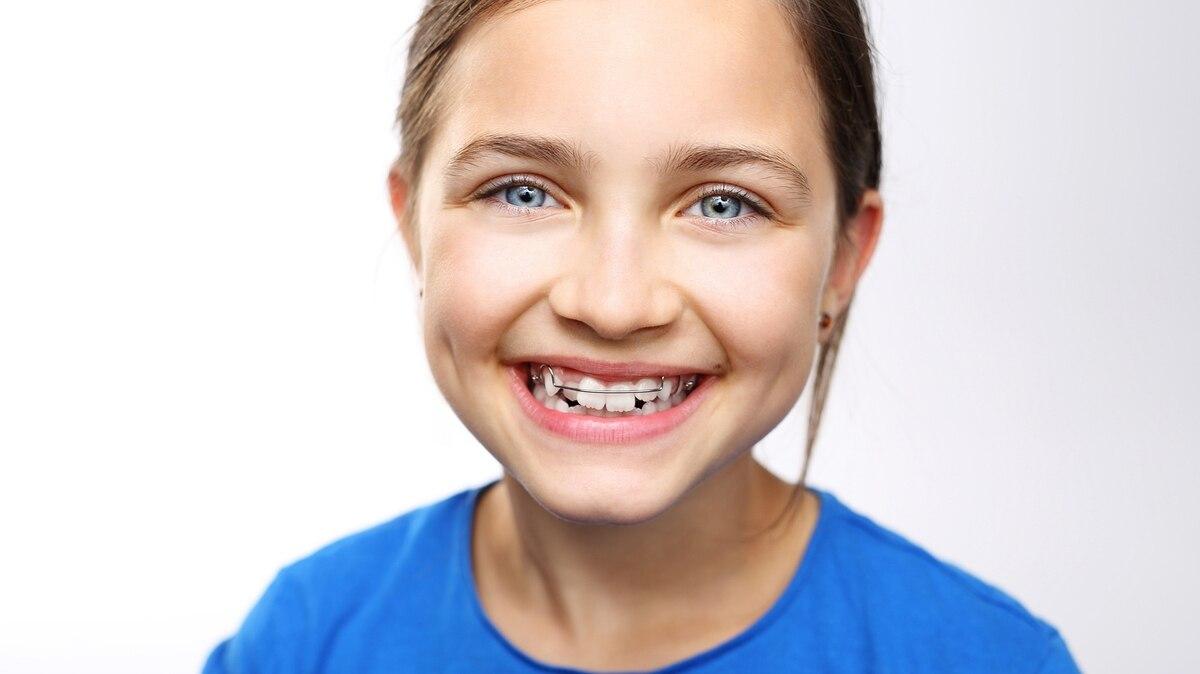 Ortodoncia: ¿por qué hay cada vez más chicos que usan aparatos ...