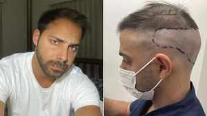 """Grego Rossello mostró el proceso y el resultado de su implante capilar: """"Lo ideal sería aceptarnos como somos, pero es jodido"""""""