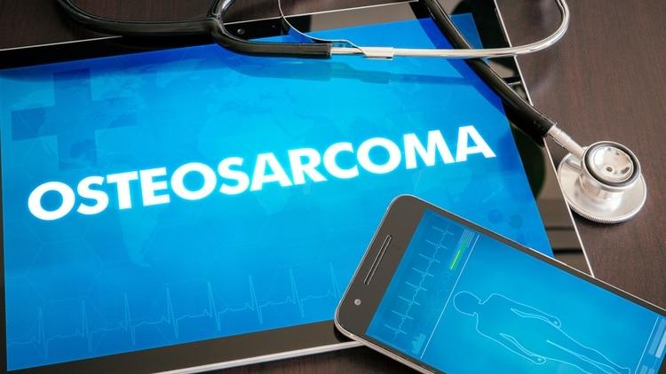 El promedio en la Argentina es de aproximadamente 40 casos de osteosarcoma al año (Shutterstock)
