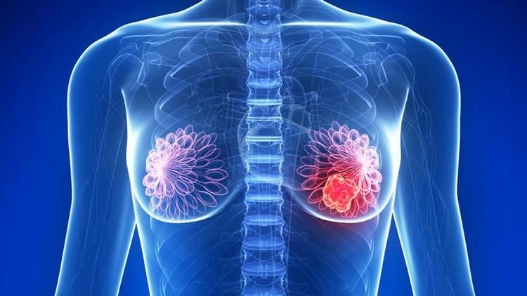 Rayos X al torso de una mujer mostrando señales de padecimiento del cáncer de mama