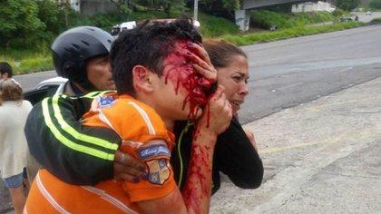 Rufo Chacón perdió los ojos a causa de la represión