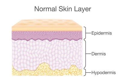Esta nueva técnica incluye tanto a la dermis como a la epidermis (Shutterstock)