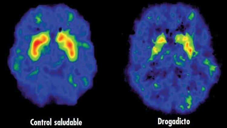 Imagen en tomografía computada de un cerebro sano y otro adicto a la cocaína (Medlineplus)