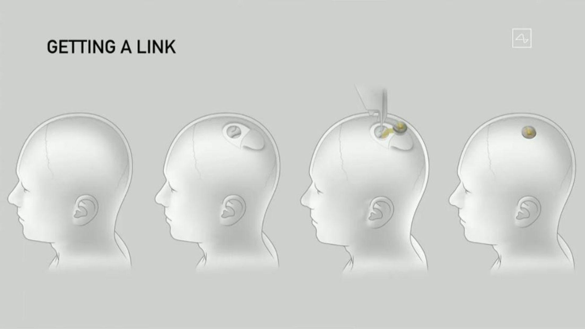 Neuralink, 28 de agosto 2020