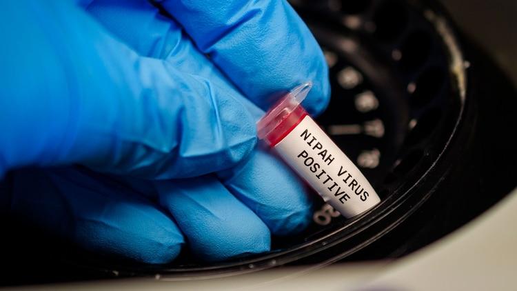 El problema es que el virus Nipah presenta una tasa de letalidad del 40 al 75% (Shutterstock)
