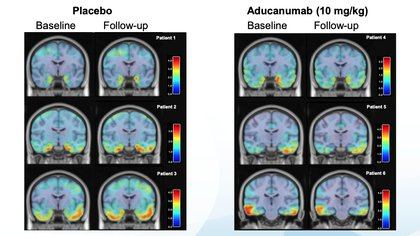 Imágenes del estudio: en los pacientes tratados con placebo (izq.) no hubo mejora, al contrario; en los tratados con aducanumab (der.) desde el primer registro hasta el último se produjo una reducción en las placas del Alzheimer. (Biogen)