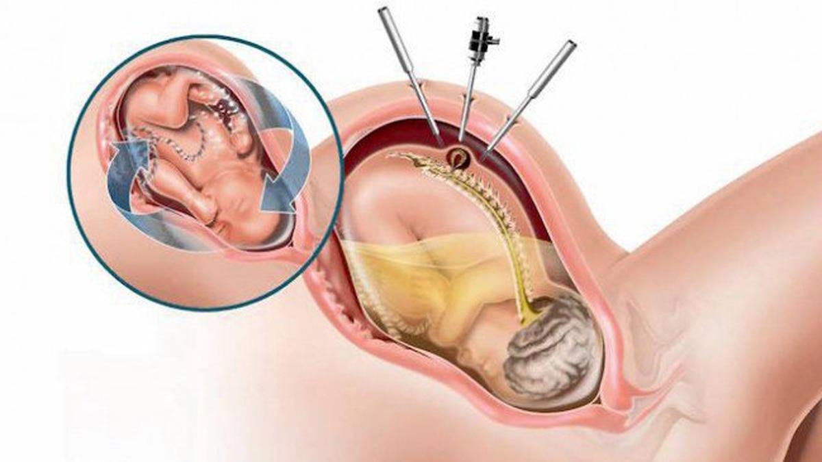 Cómo es la cirugía fetal única en el país contra la espina bífida ...