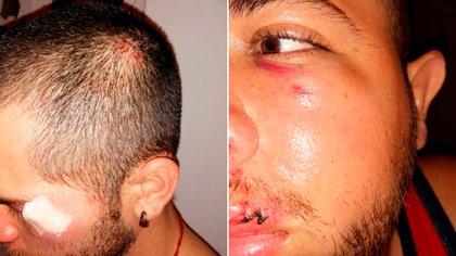 Santiago y Diego Coppens, hermanos de Amaya Coppens, fueron brutalmente golpeados por las turbas sandinistas