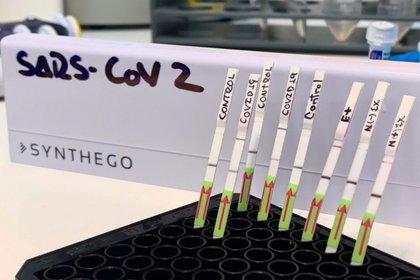 Fotografía del pasado 22 de junio que muestra algunas pruebas moleculares rápidas para covid-19, en Lima (Perú). EFE/Edward Málaga-Trillo