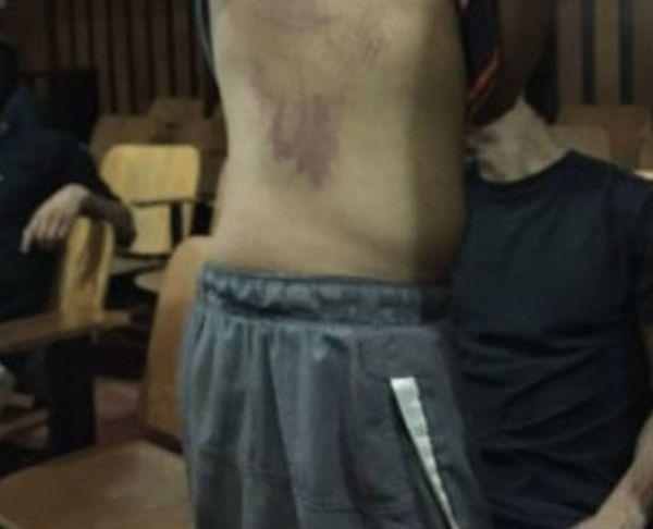 Denuncian que joven detenido en El Limón fue violado con un tubo