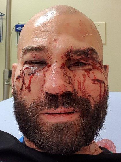 Artem Lobov mostró una imagen de su rostro después de su triunfo en el BKFC (@MMA_Fusion)