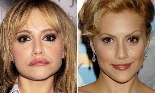 Se decía que Brittany se volvió adicta al Vicodin tras una  cirugía estética