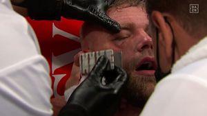 """El brutal golpe con el que Canelo Álvarez le rompió el pómulo a Saunders: """"Sabía que ya no iba a salir a pelear"""""""