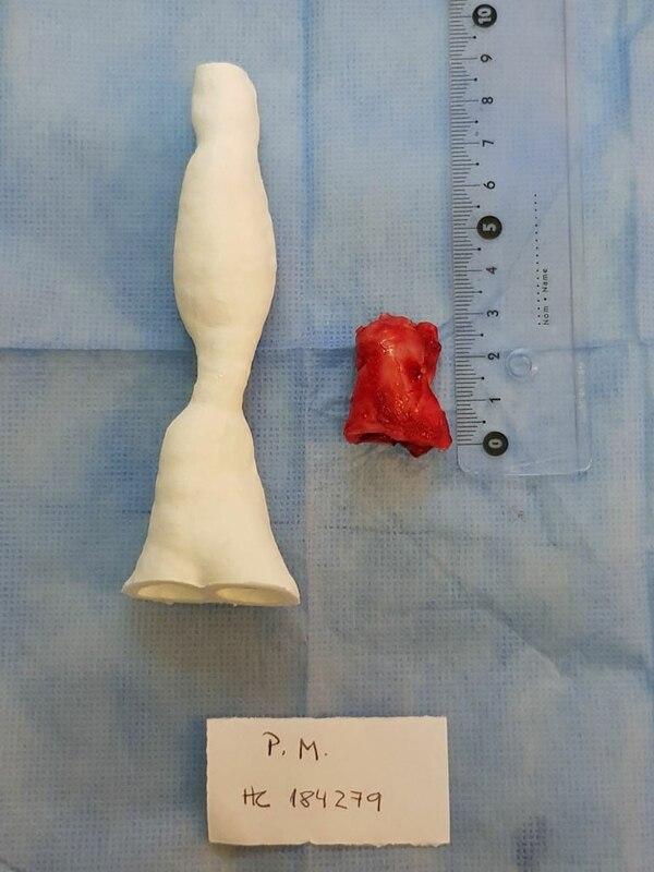 La primera impresión 3D que llevó adelante la Dra Patane de la tráquea de la joven