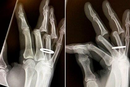 Hawk mostró las radiografías de su lesión (@tonyhawk)