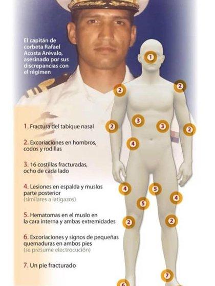 El capitán Acosta Arévalo, torturado y asesinado