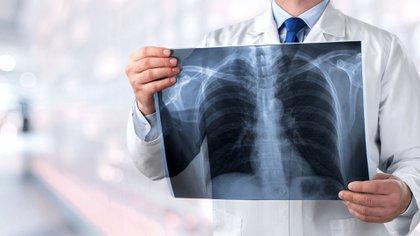 La plataforma de circulación cruzada se puede utilizar para recuperar otros órganos y tejidos humanos, incluidos hígados, corazones y riñones, así como extremidades (Shutterstock)