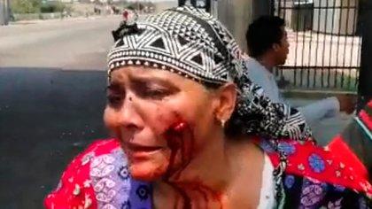 Lisbeth Palmar recibió un perdigonazo en la cara