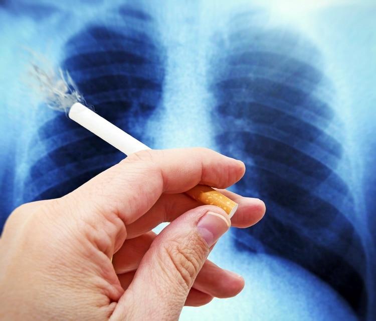El 87 por ciento de los casos de cáncer de pulmón son a causa del cigarrillo (iStock)