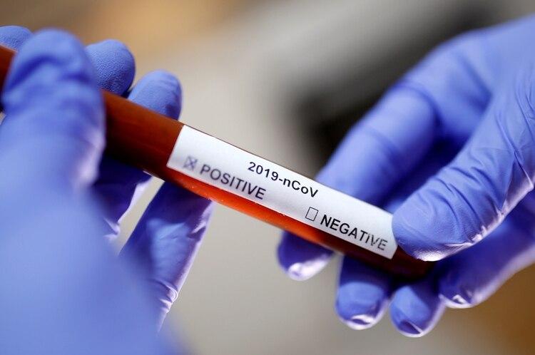 Se trata de un ensayo clínico de tratamiento por superinfección que se basa en dar virus atenuados que no se replican ni provocan enfermedad, muy inmunogénicos y que generan una gran respuesta antiviral (REUTERS)