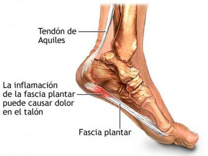 La fascitis plantar es la inflamación del tejido grueso de la planta del pie
