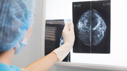 Según la Asociación de Clínicas de Chile, el cáncer mamario tuvo un -33% descenso en su diagnóstico (Shutterstock)